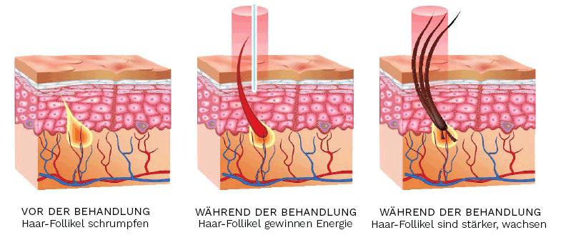 Durch das Bestrahlen mit 200 Low Level Lasern (LLL) erhalten die Zellen der Kopfhaut neue Energie, mit welcher die Haar-Follikel versorgt und gestärkt werden